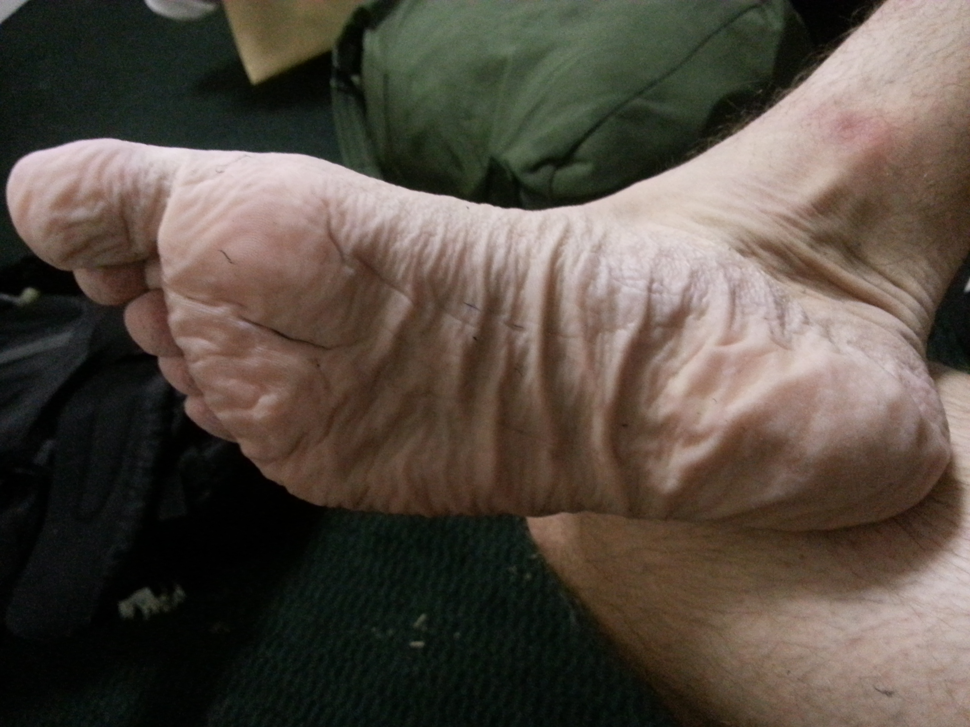 My foot after all day in a wet boot